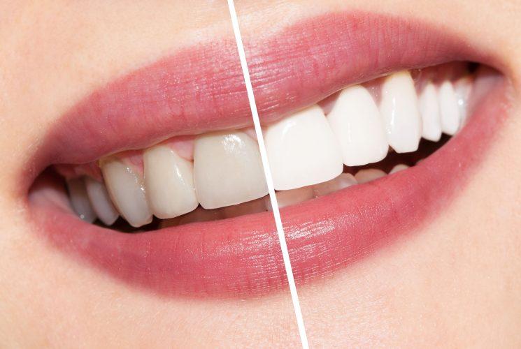 दांतों का पीलापन नहीं जा रहा है तो तुरंत करें ये आसान से उपाय