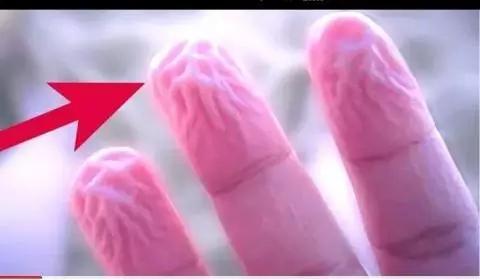पानी में ज्यादा समय तक रहने से आपकी उंगलियां भी ऐसी हो जाती हैं तो इसे नजरअंदाज ना करें