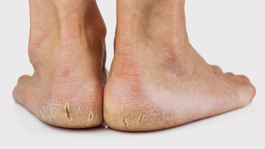 पैरों की फटी एड़ियों को कोमल सुन्दर बनाने के घरेलू उपचार