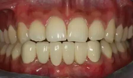दांत में लगे कीड़े को जड़ से खत्म करने के लिए करें ये घरेलू उपाय