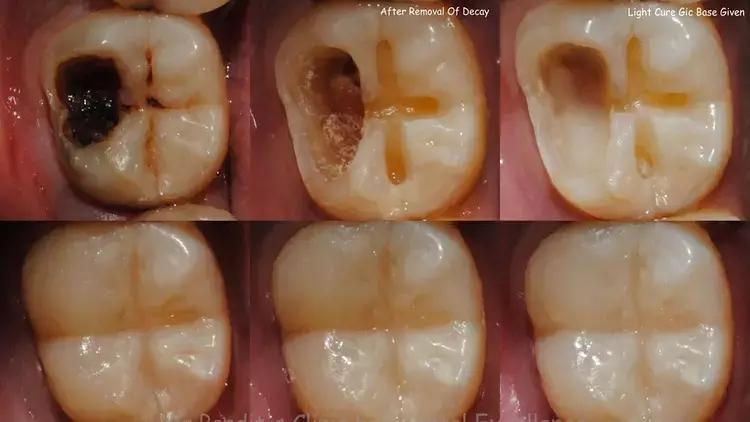 दांत के कीड़ों को मारने का सबसे आसान और कामयाब तरीका