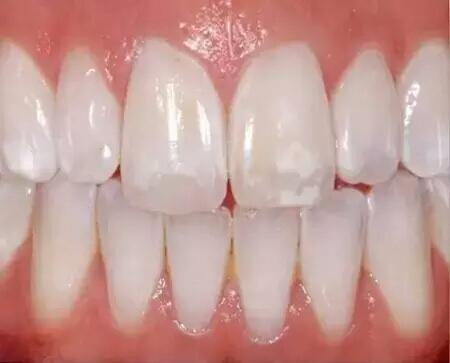 wihte teeth