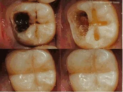 दांत के कीड़े को मिनटों में बाहर निकाल फेंकता है यह घरेलु उपाय, ऐसे करें प्रयोग